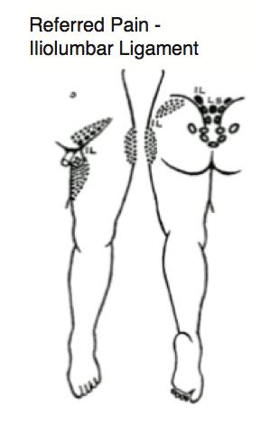 iliolumbar referral